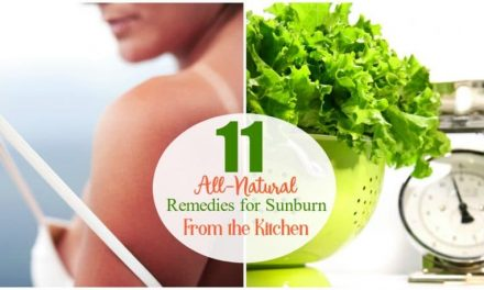 How To Stop the Pain and Get Sunburn Relief Naturally